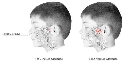 Лазеротерапия при аденоидах у детей - эффективность лечения без прижигания тканей лазером