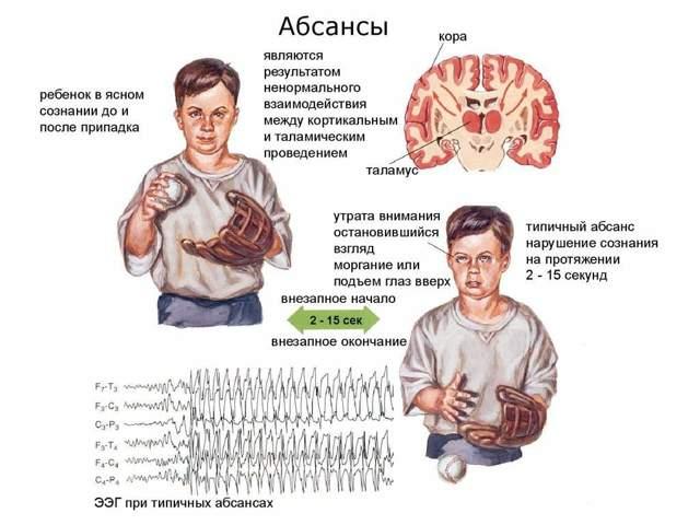 Абсансная эпилепсия у детей: признаки, лечение и прогноз на выздоровление