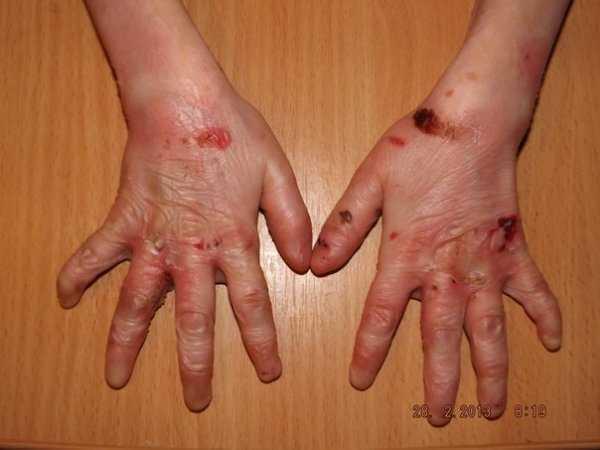 Буллезный эпидермолиз  (