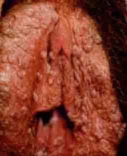 Контагиозный моллюск у детей: фото на коже, лечение и удаление на разных стадиях болезни