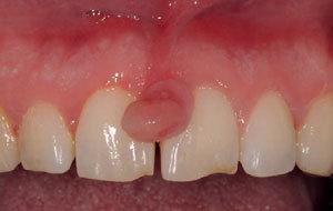 Нарост на десне у ребенка - фото эпулиса, симптомы при прорезывании зубов, лечение