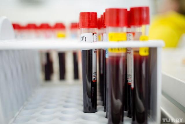 У ребенка повышены базофилы: причины и нормы анализа крови