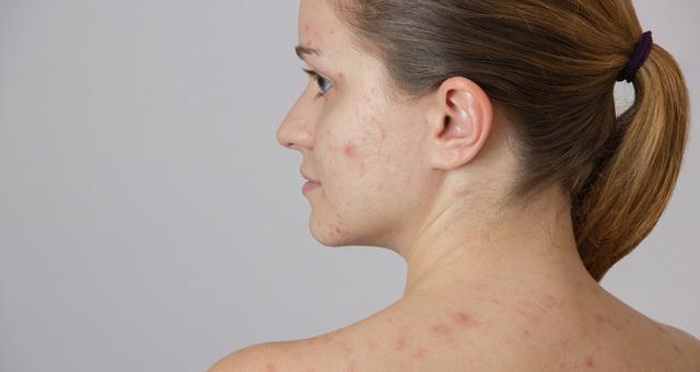 Пигментные пятна при беременности на лице, животе, груди и теле: почему возникают, как избавиться?