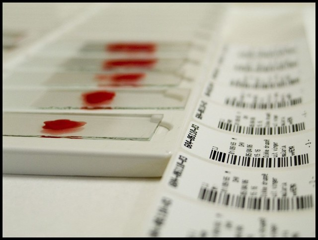 Повышены эритроциты в крови у ребенка: о чем это говорит и каковы нормы показателя по возрасту?