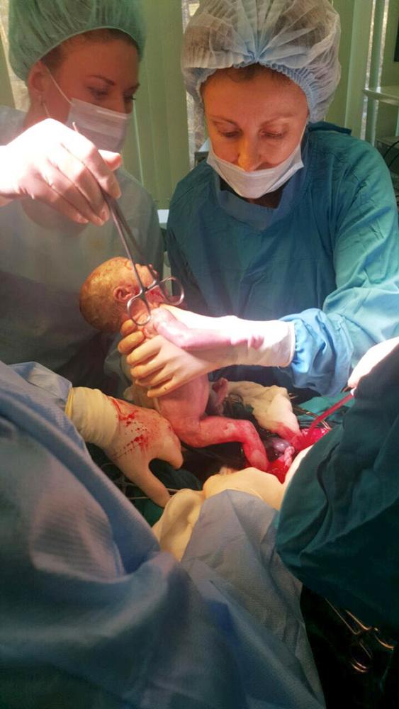 Боли в кишечнике при беременности: где расположен орган, в чем причина проблемы и что делать?