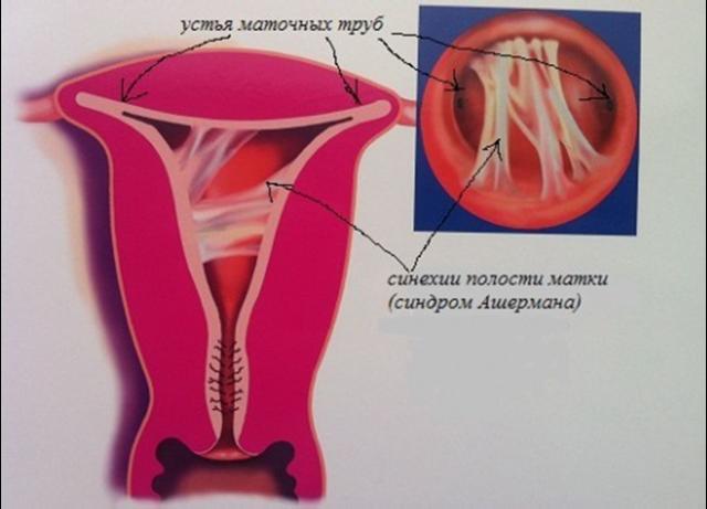 Месячные после выскабливания матки: когда пойдут, почему может быть задержка менструации?