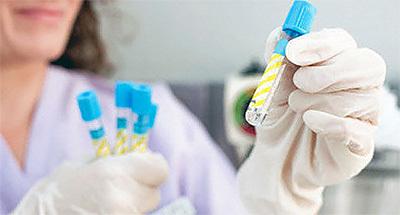 Свертываемость крови - норма у детей по времени, расшифровка коагулограммы в таблице