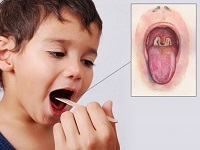 Ложный круп у детей: симптомы и лечение болезни, причины, правила неотложной помощи
