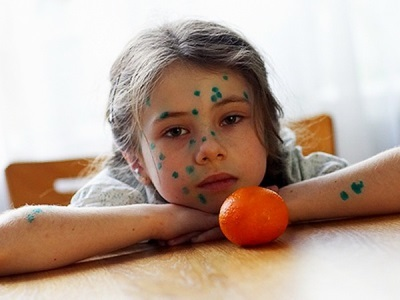 Чем мазать ветрянку у детей, кроме зеленки: мазь Бепантен, Фенистил гель другие бесцветные средства