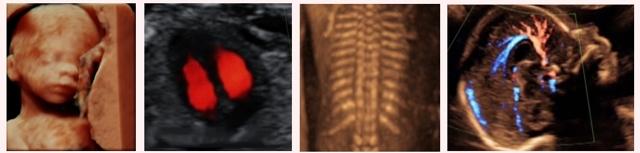 Когда формируется пол ребенка в утробе матери: на каком сроке можно его определить?