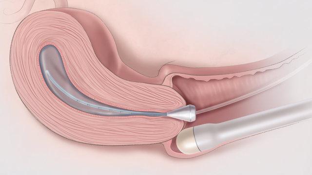 Санация влагалища и шейки матки в гинекологии: что это такое, когда проводится?