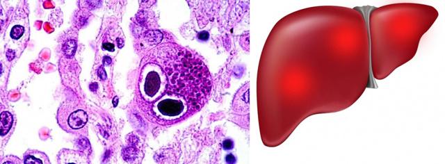 Цитомегаловирус и беременность: последствия для плода, разновидности и симптомы, лечение