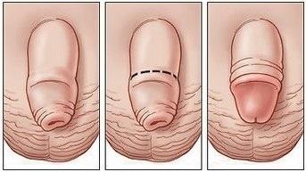 Фимоз у мальчиков: фото до и после операции, лечение в домашних условиях
