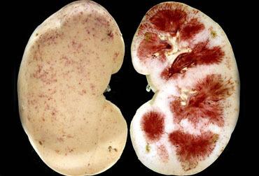 Пиелонефрит при беременности: симптомы воспаления почек, лечение, последствия для ребенка