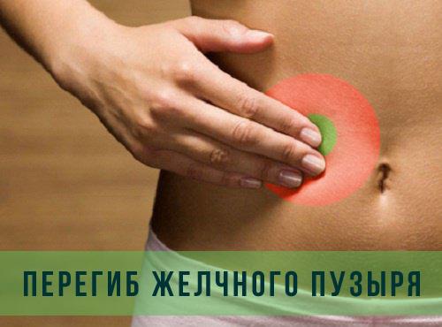 Перегиб желчного пузыря у ребенка: симптомы и лечение загибов органа